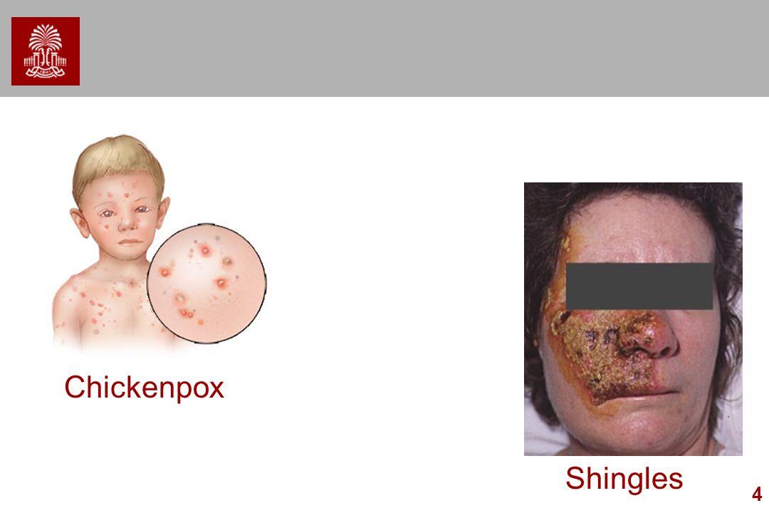Chickenpox Shingles