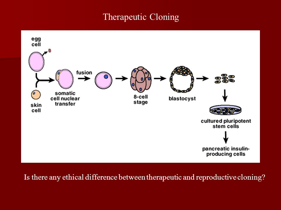 Therapeutic Cloning Is there any ethical difference between therapeutic and reproductive cloning