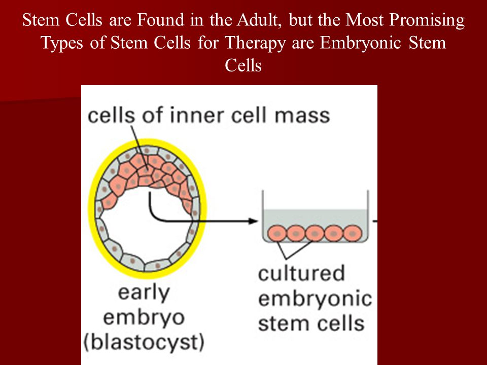 Stem Cells are Found in the Adult, but the Most Promising Types of Stem Cells for Therapy are Embryonic Stem Cells