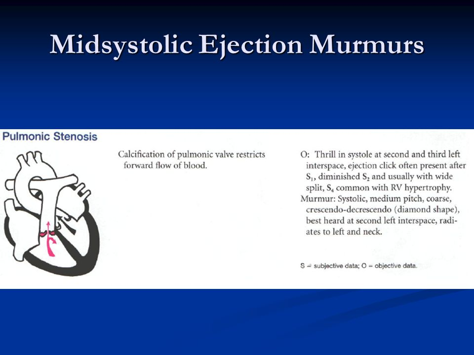 Midsystolic Ejection Murmurs