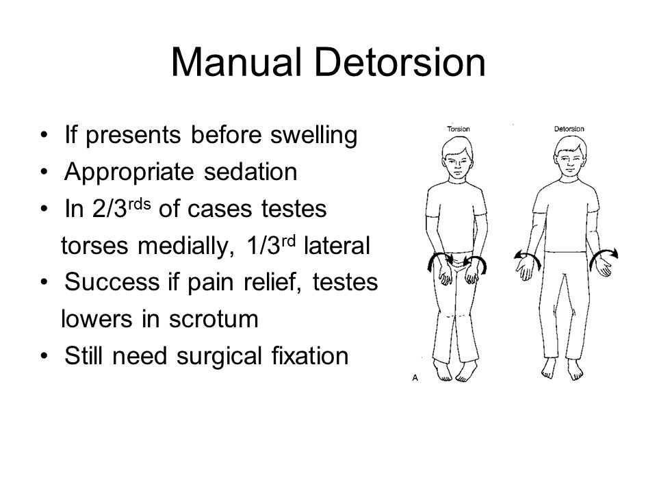 Manual Detorsion If presents before swelling Appropriate sedation