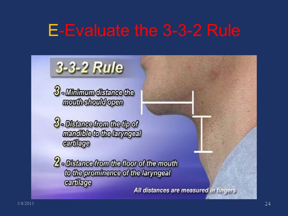 E-Evaluate the 3-3-2 Rule 4/14/2017