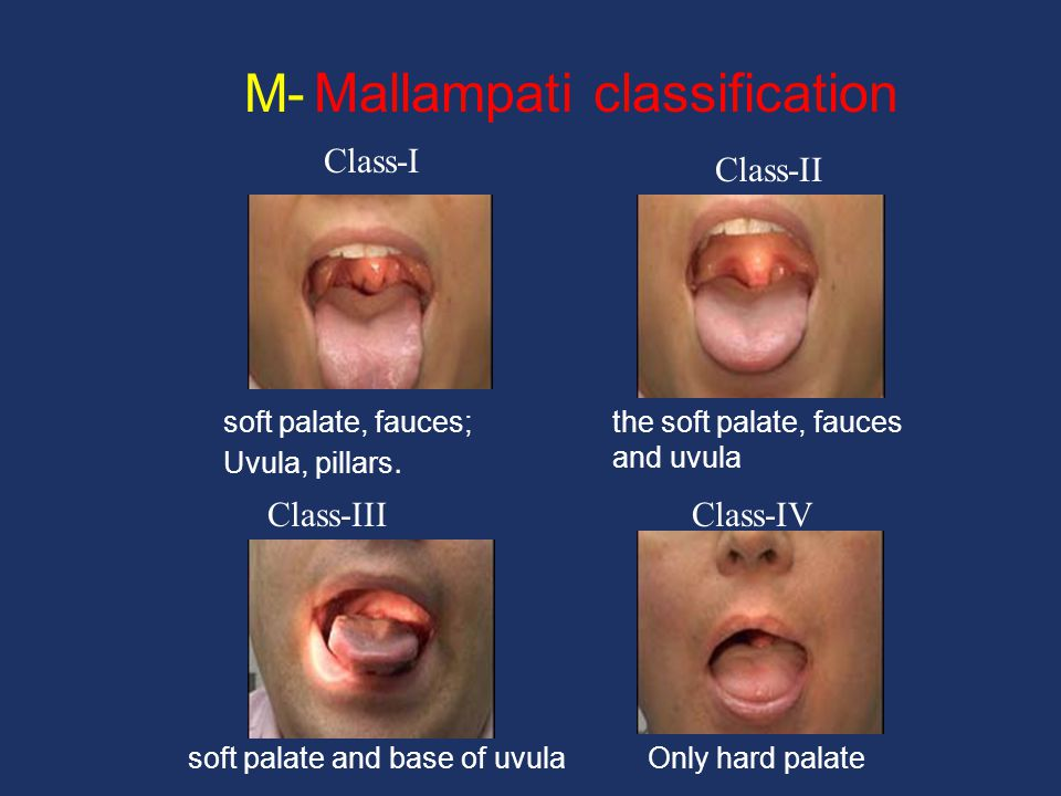 M- Mallampati classification