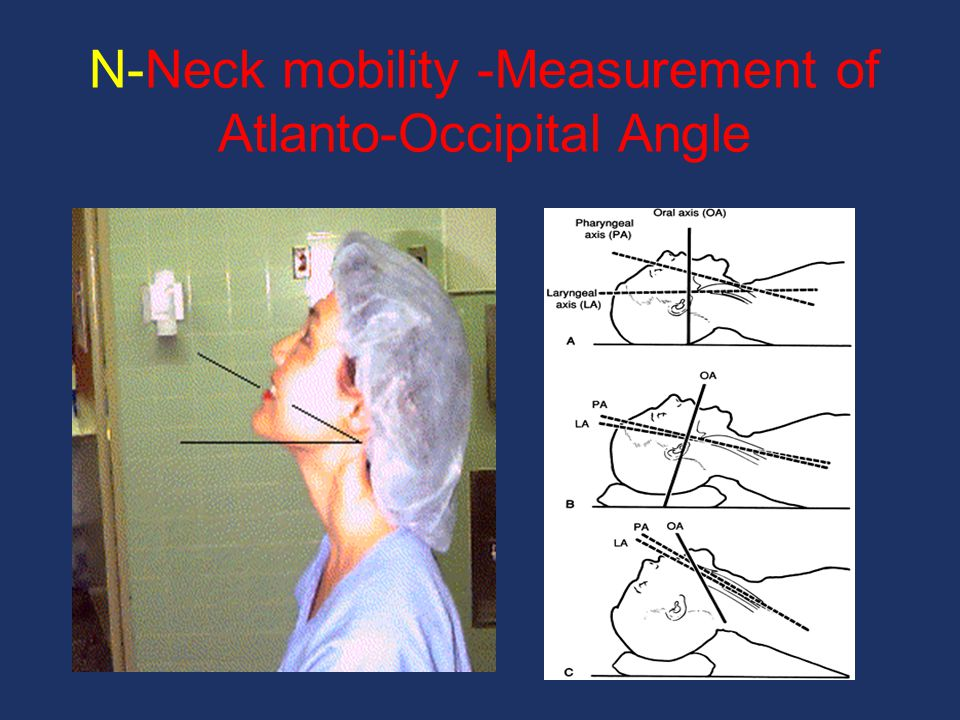 N-Neck mobility -Measurement of Atlanto-Occipital Angle