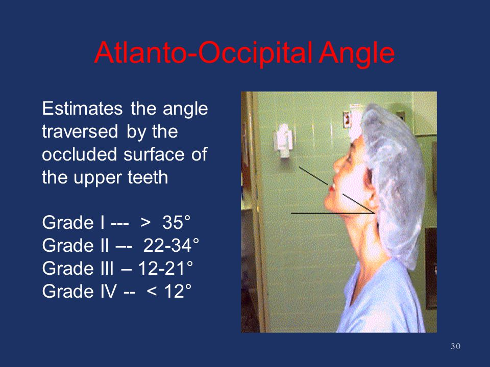 Atlanto-Occipital Angle