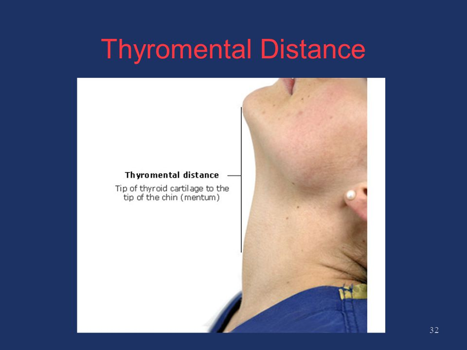 Thyromental Distance