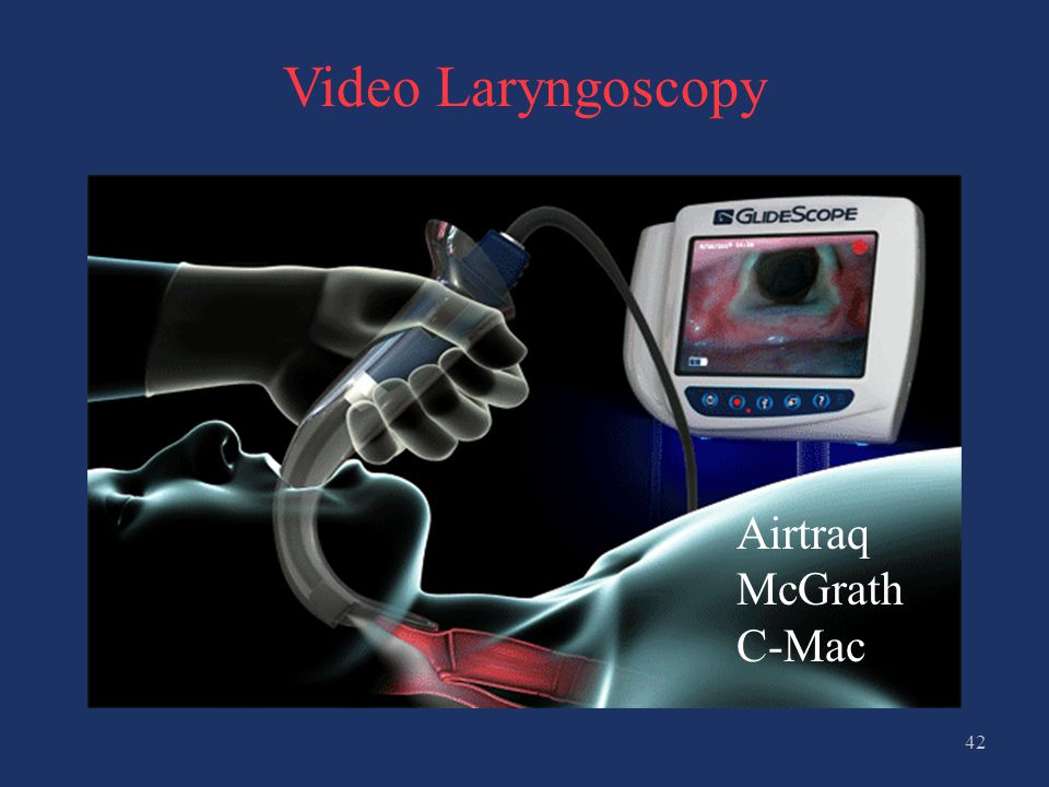 Video Laryngoscopy Airtraq McGrath C-Mac