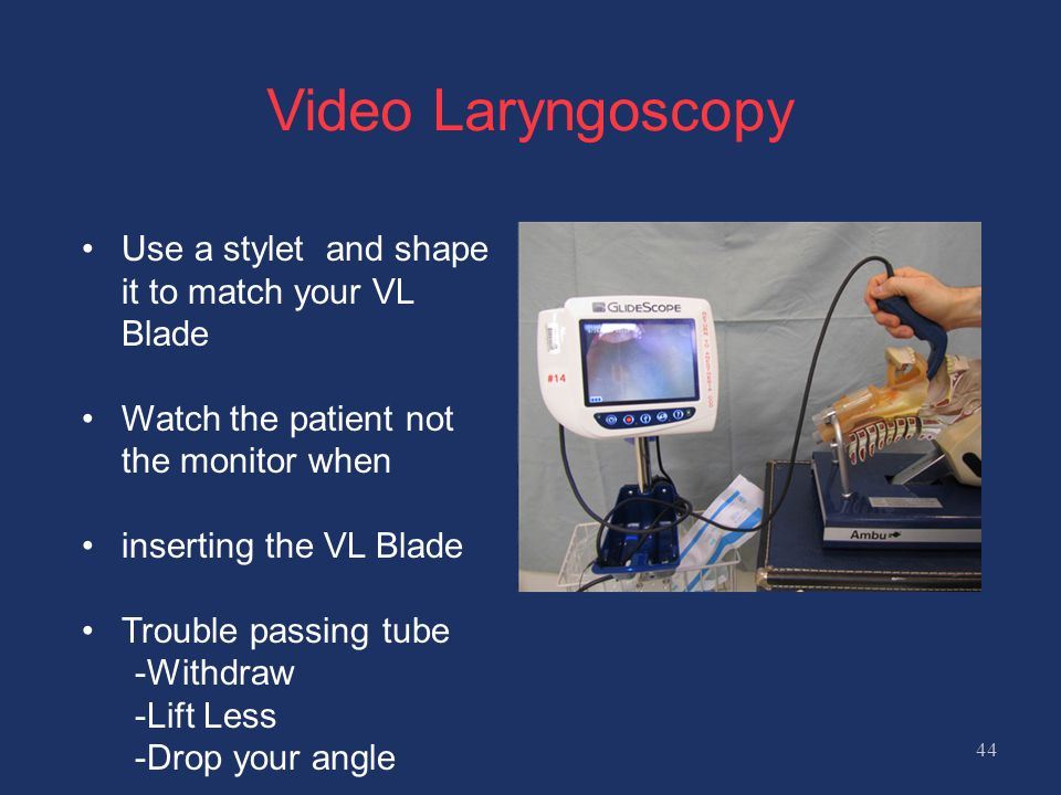 Video Laryngoscopy Use a stylet and shape it to match your VL Blade