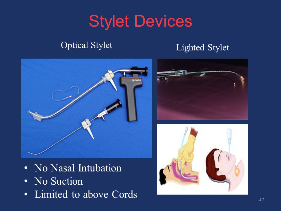 Stylet Devices No Nasal Intubation No Suction Limited to above Cords