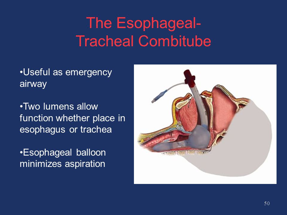 The Esophageal- Tracheal Combitube