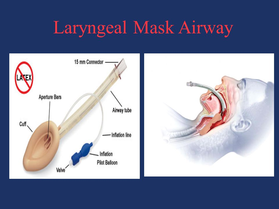 Laryngeal Mask Airway