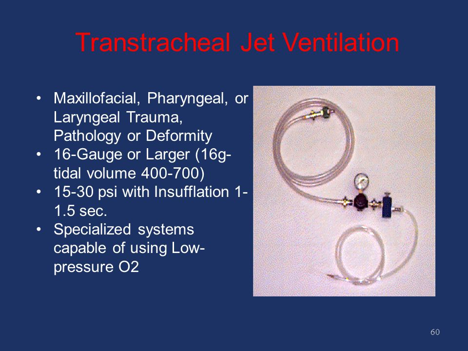 Transtracheal Jet Ventilation