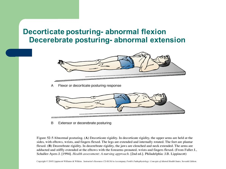 Decorticate posturing- abnormal flexion Decerebrate posturing- abnormal extension