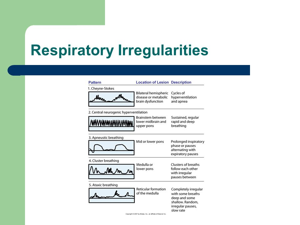 Respiratory Irregularities