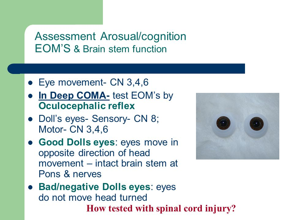 Assessment Arosual/cognition EOM'S & Brain stem function