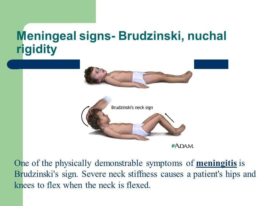 Meningeal signs- Brudzinski, nuchal rigidity