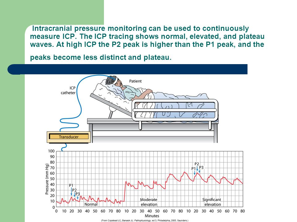 Intracranial pressure monitoring can be used to continuously measure ICP.