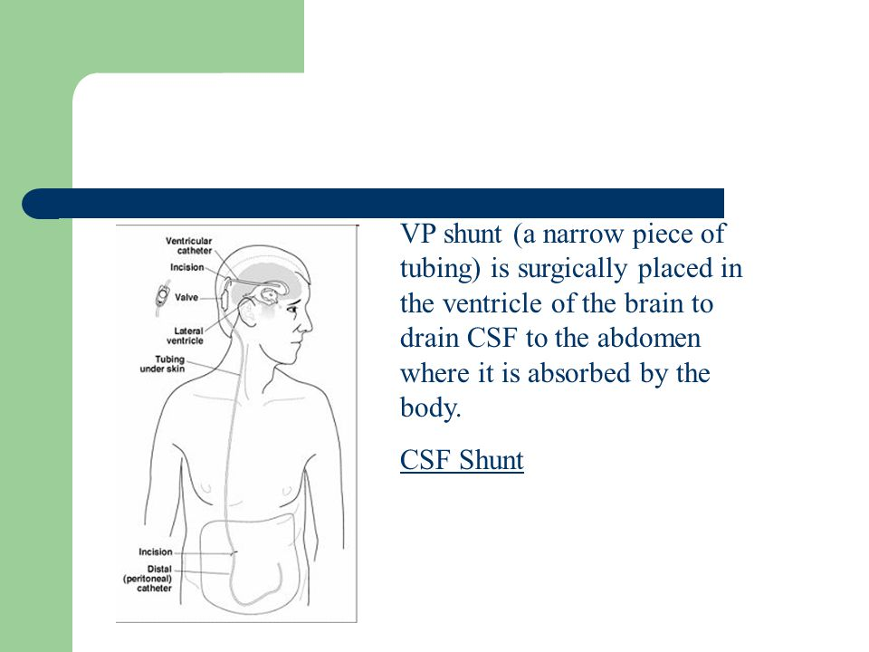 VP shunt (a narrow piece of tubing) is surgically placed in the ventricle of the brain to drain CSF to the abdomen where it is absorbed by the body.