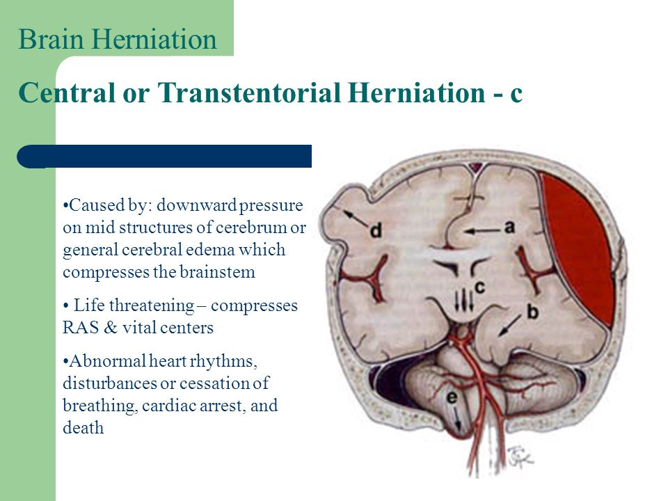 Central or Transtentorial Herniation - c