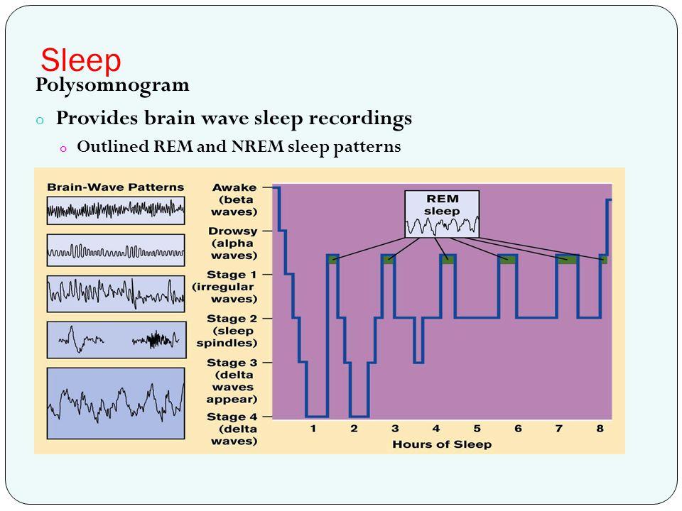 Sleep Polysomnogram Provides brain wave sleep recordings