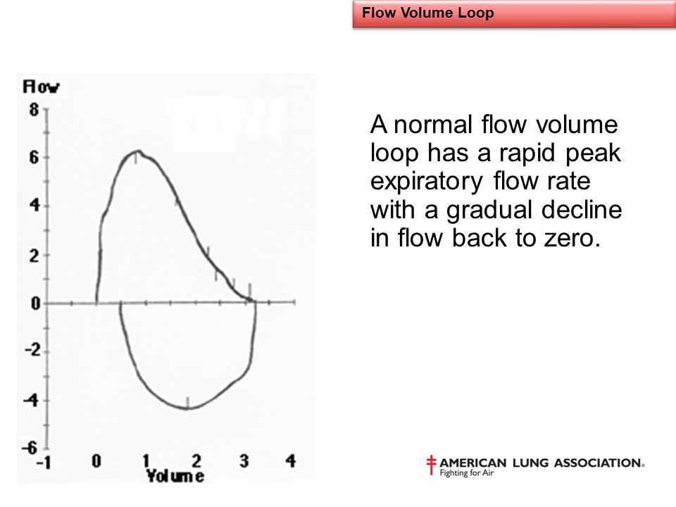 Flow Volume Loop A normal flow volume loop has a rapid peak expiratory flow rate with a gradual decline in flow back to zero.
