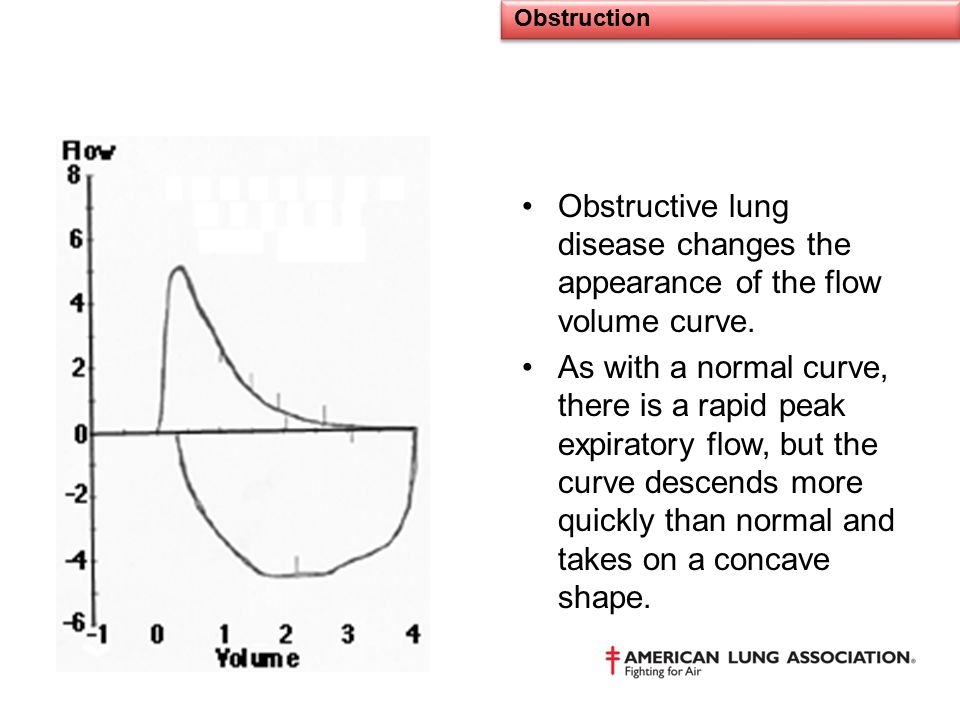 Obstruction Obstructive lung disease changes the appearance of the flow volume curve.