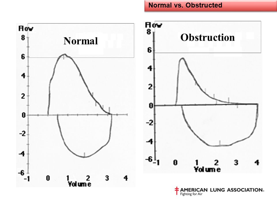 Normal vs. Obstructed Obstruction Normal