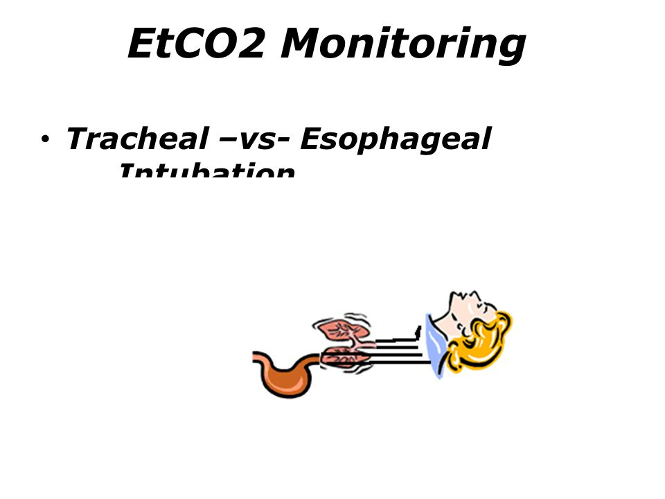 EtCO2 Monitoring Tracheal –vs- Esophageal Intubation