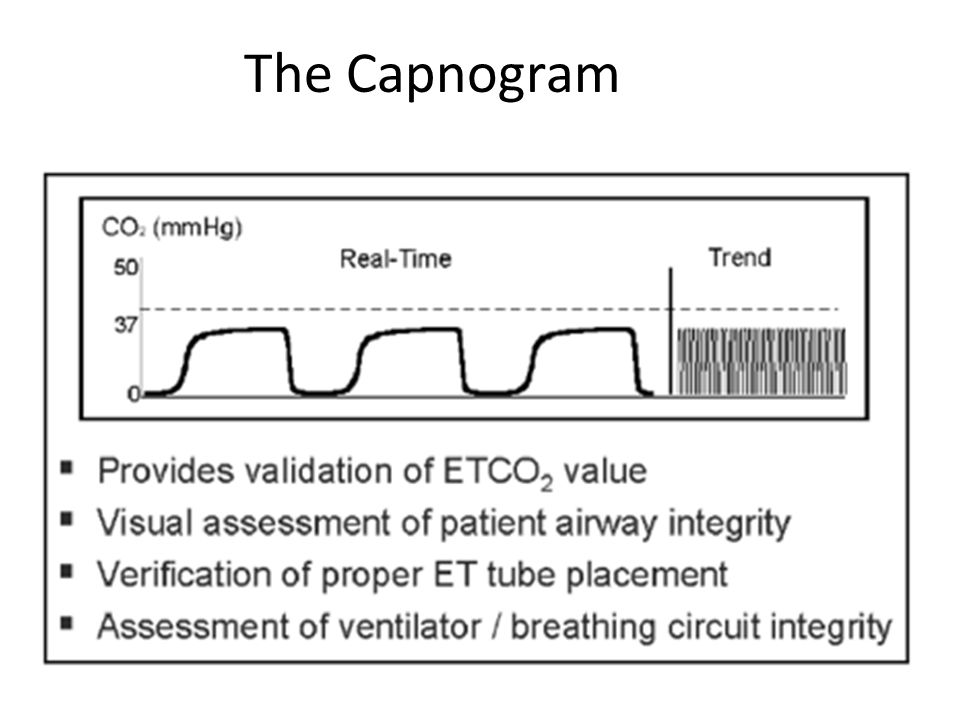 The Capnogram