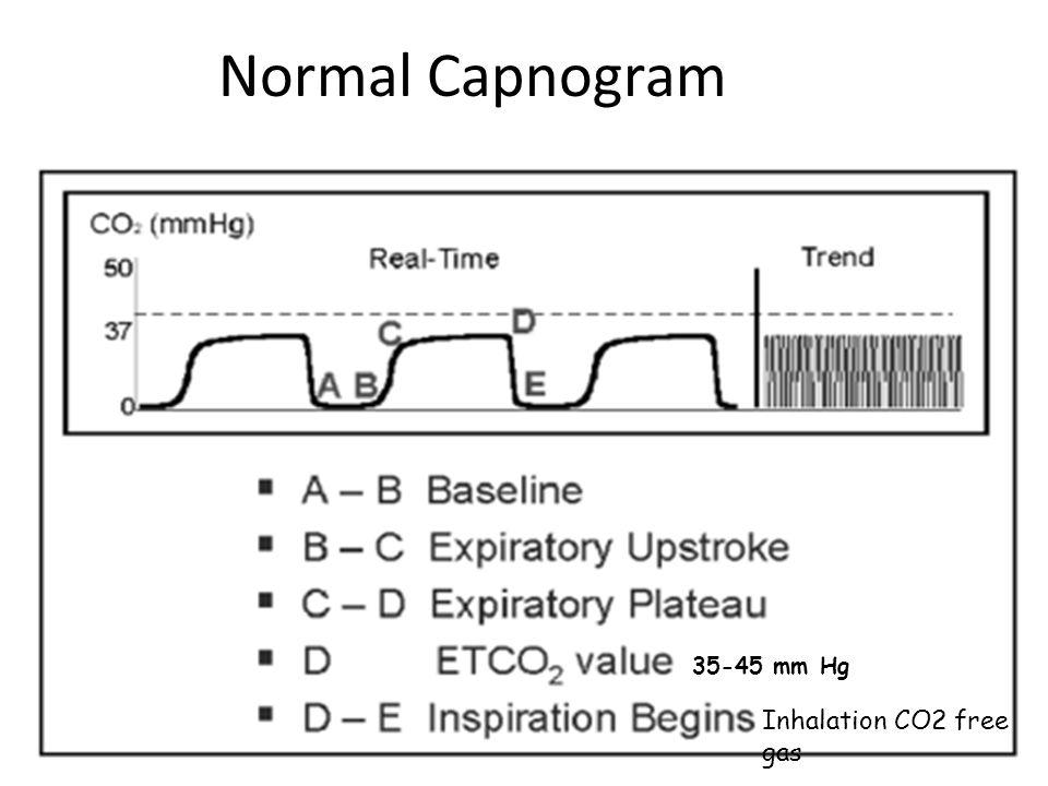 Normal Capnogram 35-45 mm Hg Inhalation CO2 free gas