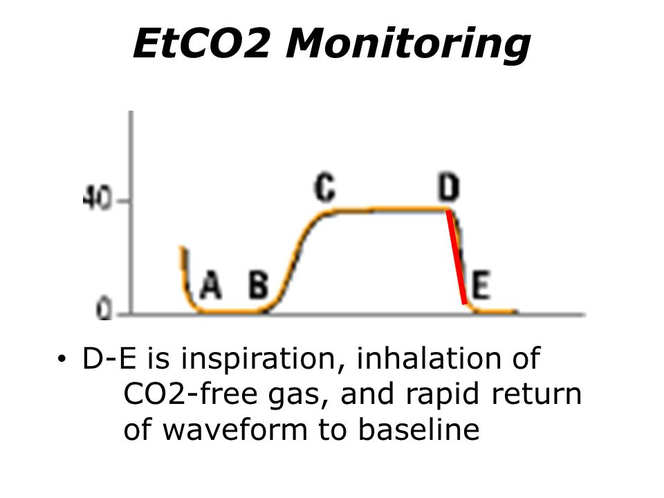 EtCO2 Monitoring D-E is inspiration, inhalation of CO2-free gas, and rapid return of waveform to baseline.