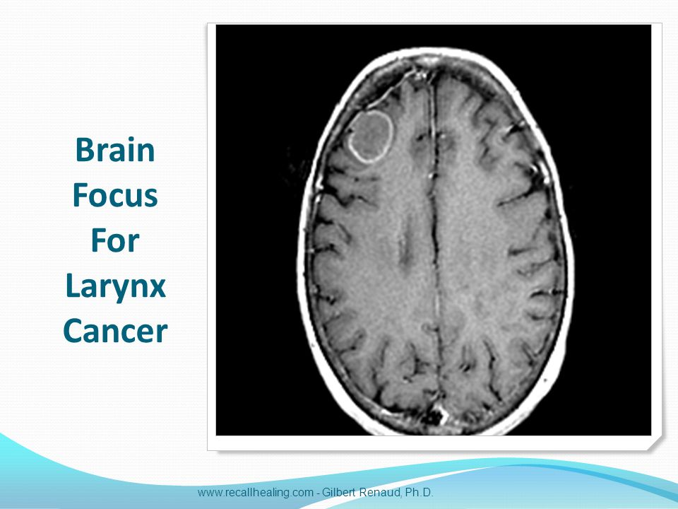 Brain Focus For Larynx Cancer