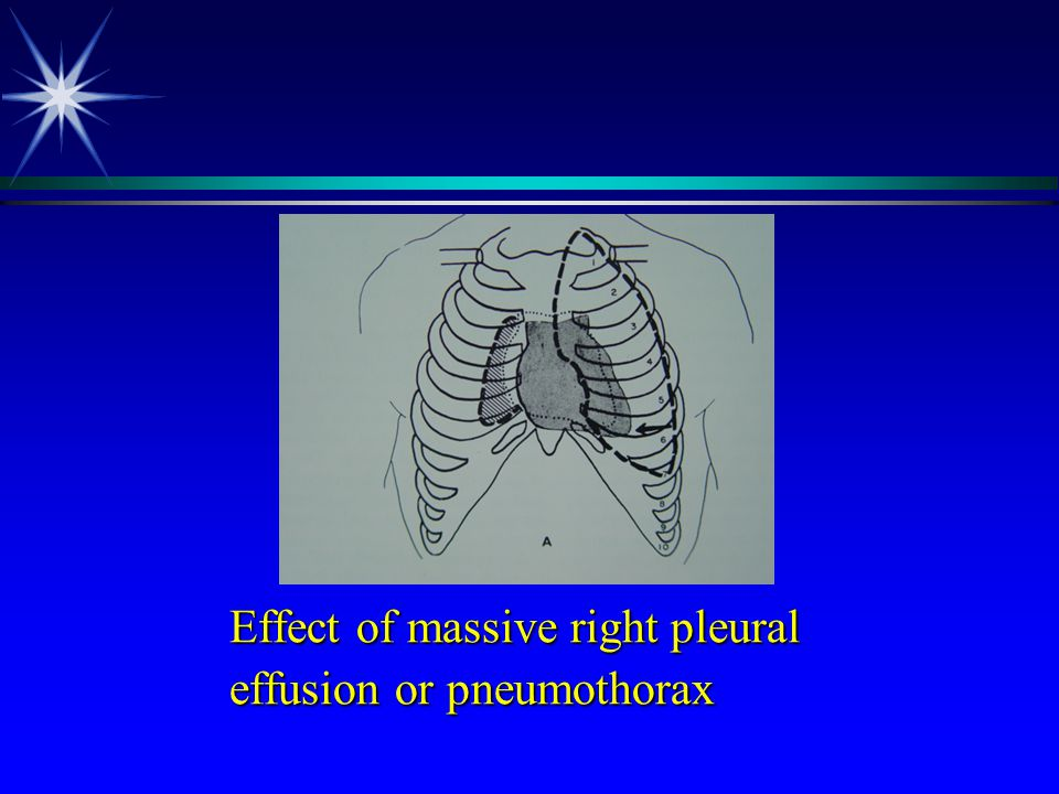effusion or pneumothorax