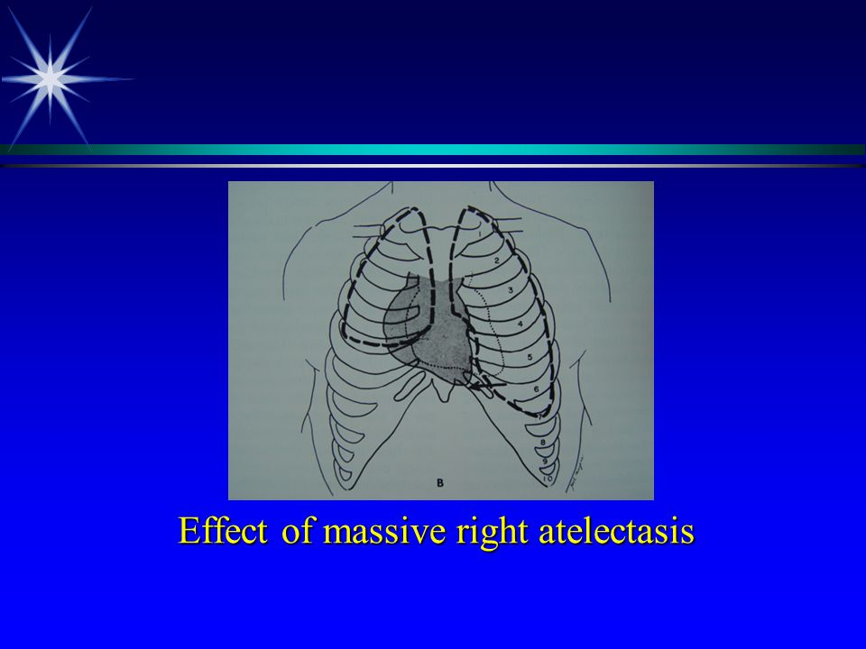 Effect of massive right atelectasis