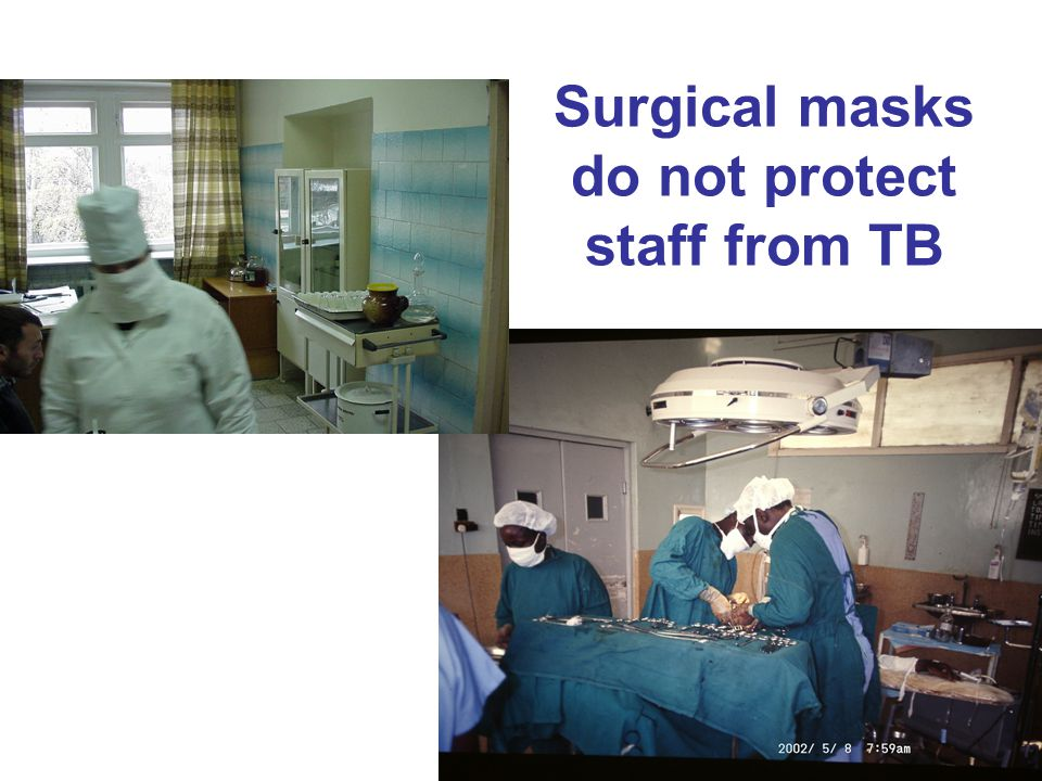 Surgical masks do not protect staff from TB