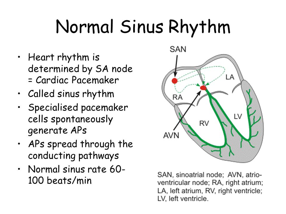 Normal Sinus Rhythm Heart rhythm is determined by SA node = Cardiac Pacemaker. Called sinus rhythm.