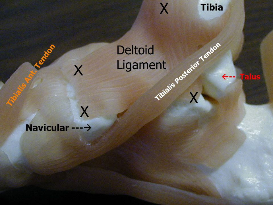 X X X X Deltoid Ligament Tibia Navicular --- Tibialis Ant. Tendon