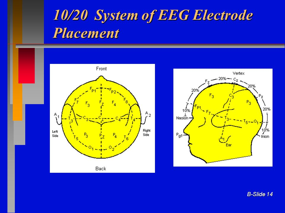 10/20 System of EEG Electrode Placement