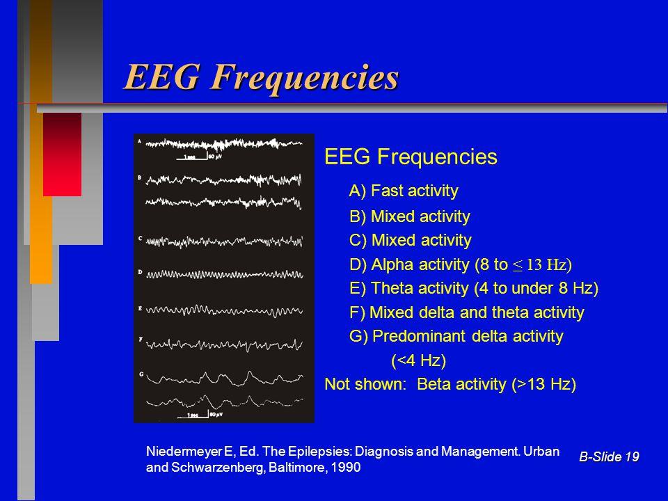 EEG Frequencies EEG Frequencies A) Fast activity B) Mixed activity
