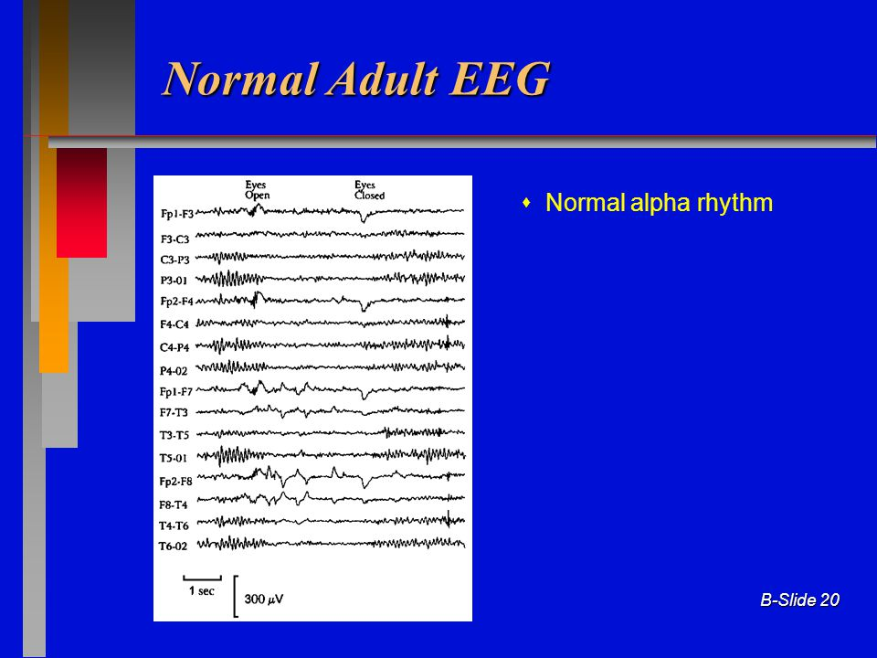Normal Adult EEG  Normal alpha rhythm