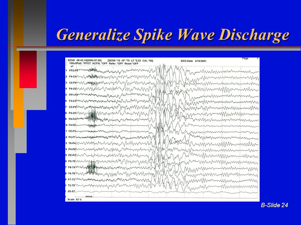 Generalize Spike Wave Discharge