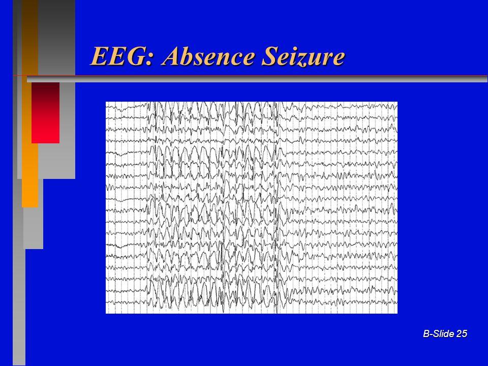 EEG: Absence Seizure