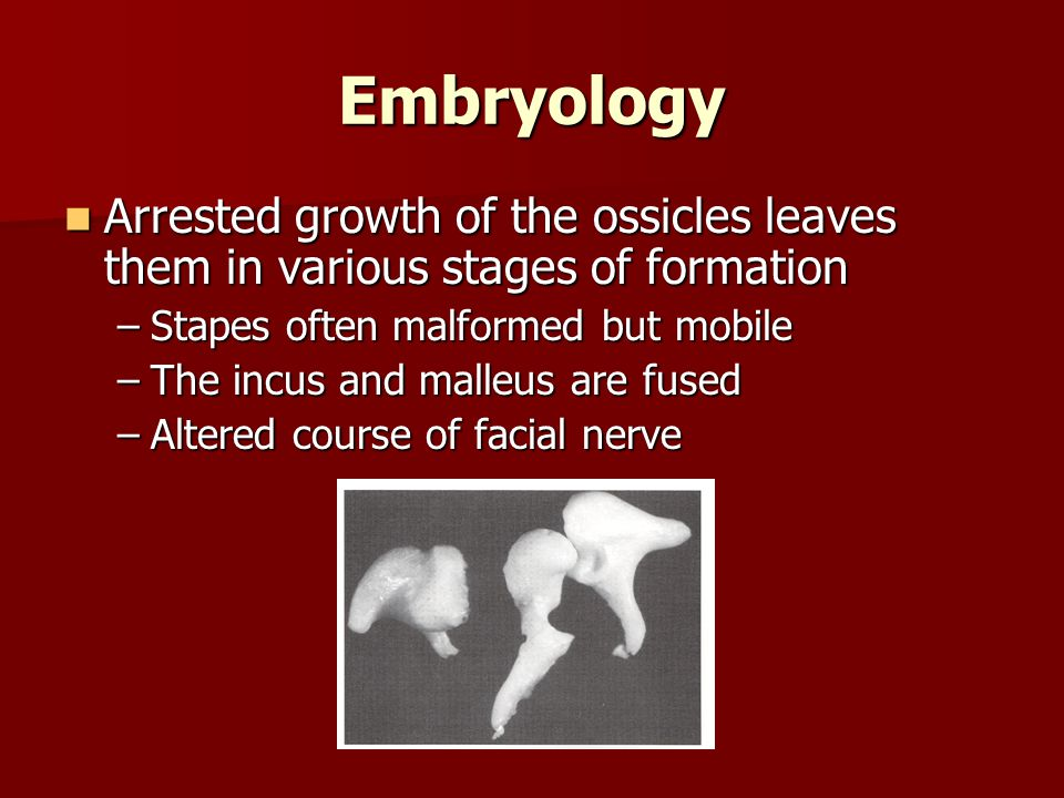 Embryology Arrested growth of the ossicles leaves them in various stages of formation. Stapes often malformed but mobile.