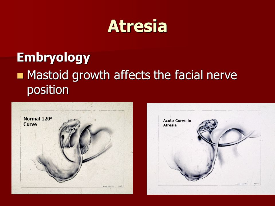 Atresia Embryology Mastoid growth affects the facial nerve position