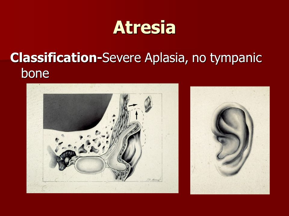 Atresia Classification-Severe Aplasia, no tympanic bone