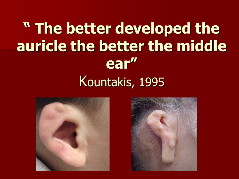 The better developed the auricle the better the middle ear Kountakis, 1995