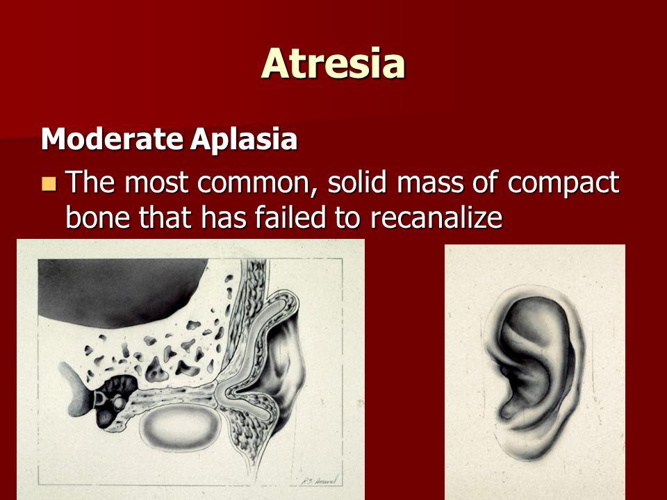 Atresia Moderate Aplasia