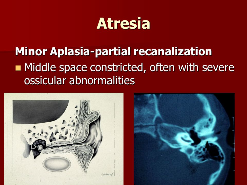 Atresia Minor Aplasia-partial recanalization