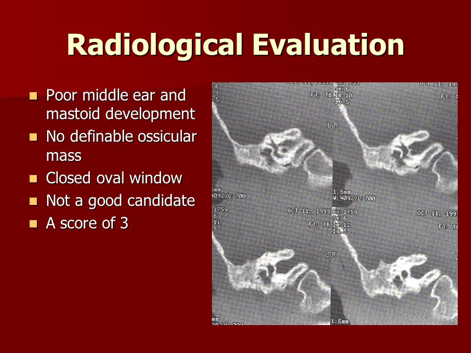 Radiological Evaluation