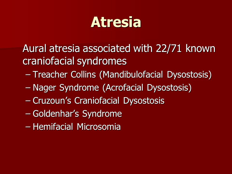 Atresia Aural atresia associated with 22/71 known craniofacial syndromes. Treacher Collins (Mandibulofacial Dysostosis)